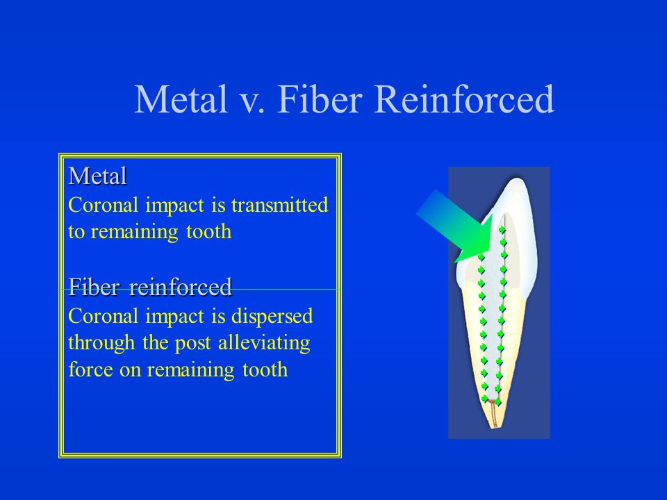Metal v. Fiber Reinforced Metal Coronal impact is transmitted to remaining tooth Fiber reinforced Coronal impact is dispersed through the post allevia