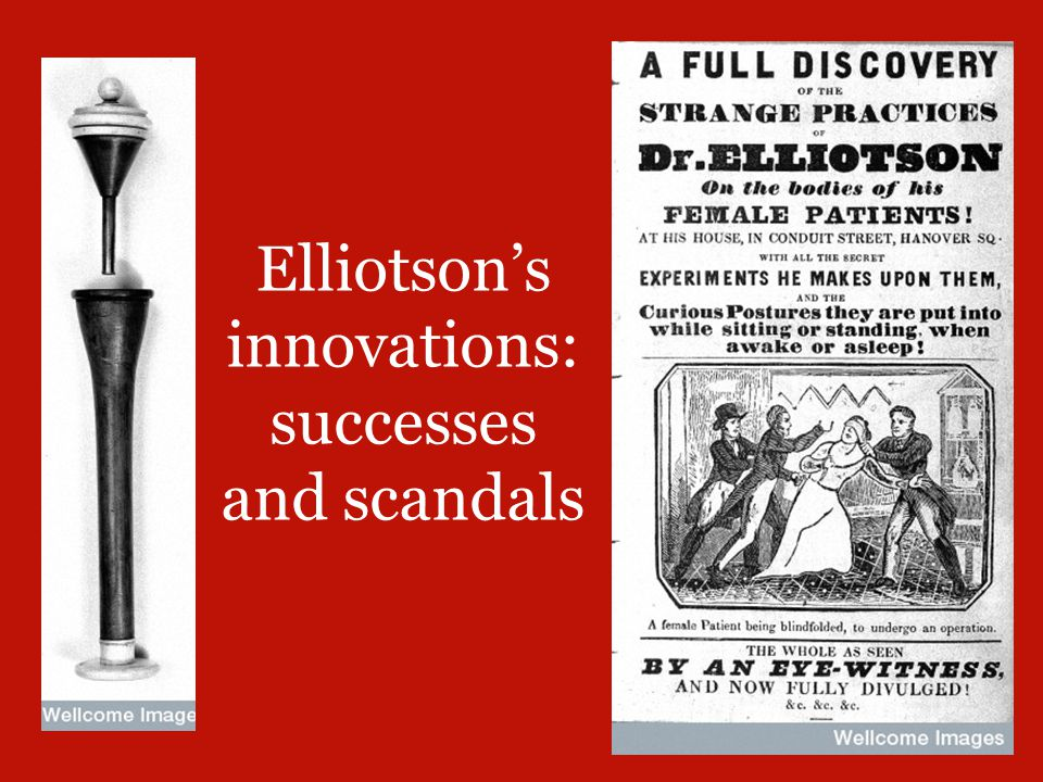 Elliotson's innovations: successes and scandals