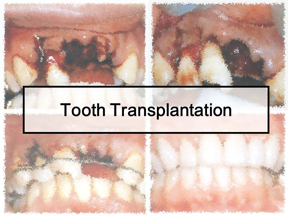 Postoperative care and follow-up Postoperative instructions are the same as those given following extraction of impacted teeth After surgery 1 day: the tooth has retained its new position : periodontal pack still in good position : swelling is within acceptable levels 7 days : stitch off
