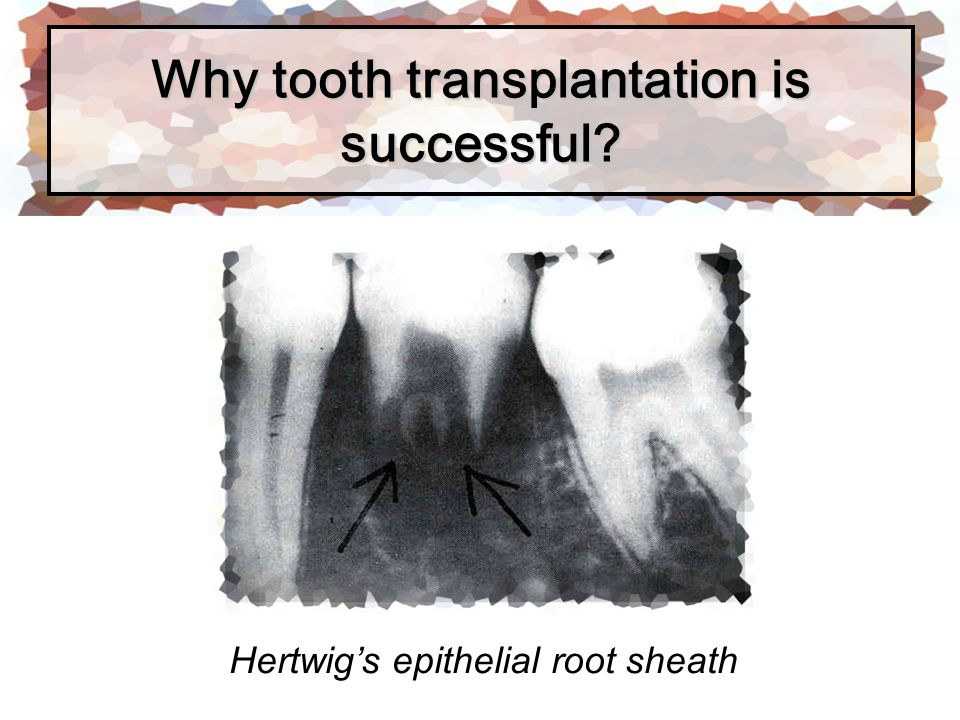 Tooth transplantation 1.Autogenous transplantation 2.Allogeneic transplantation 3.Isogeneic transplantation 4.Xenegeneic transplantation