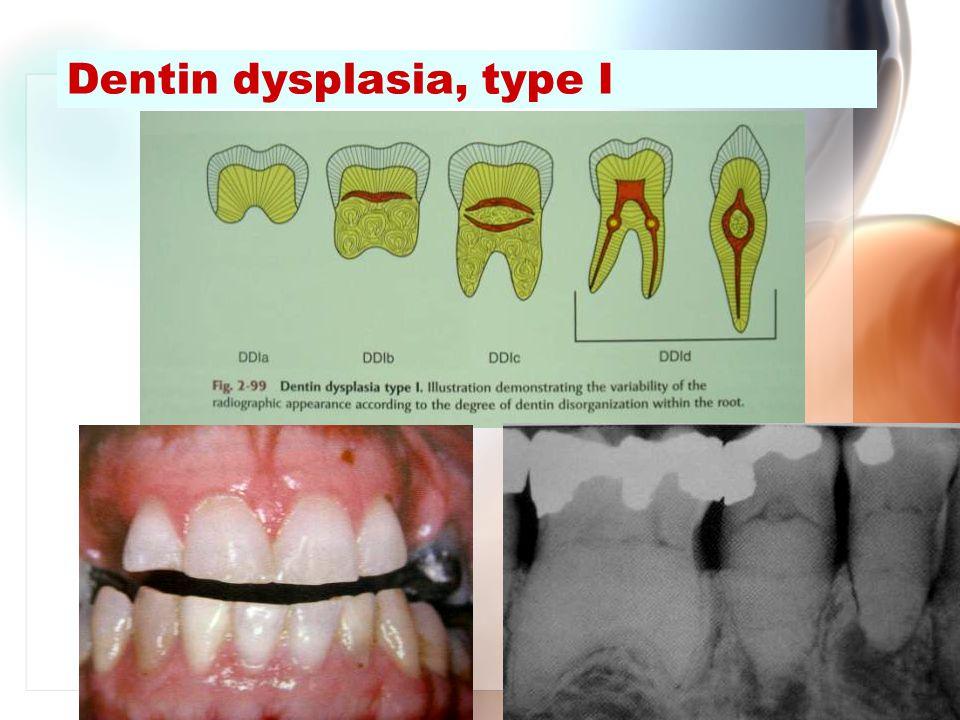 Wen-Chen Wang Dentin dysplasia, type I