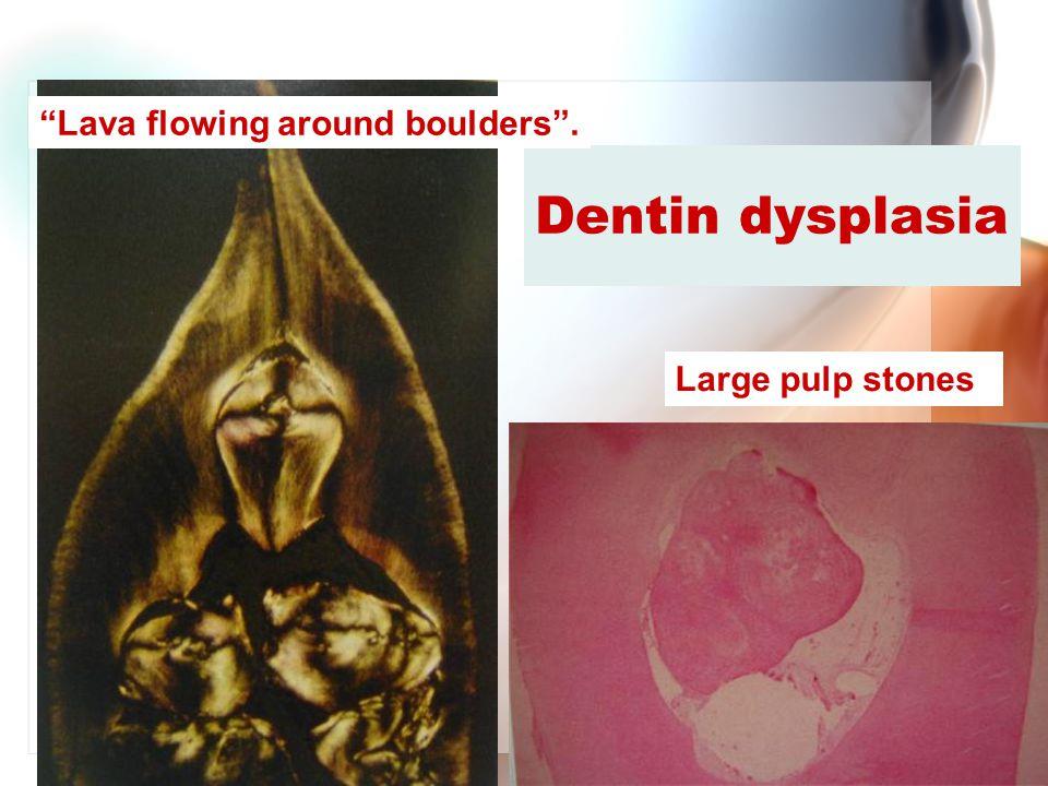 "Wen-Chen Wang Dentin dysplasia ""Lava flowing around boulders"". Large pulp stones"