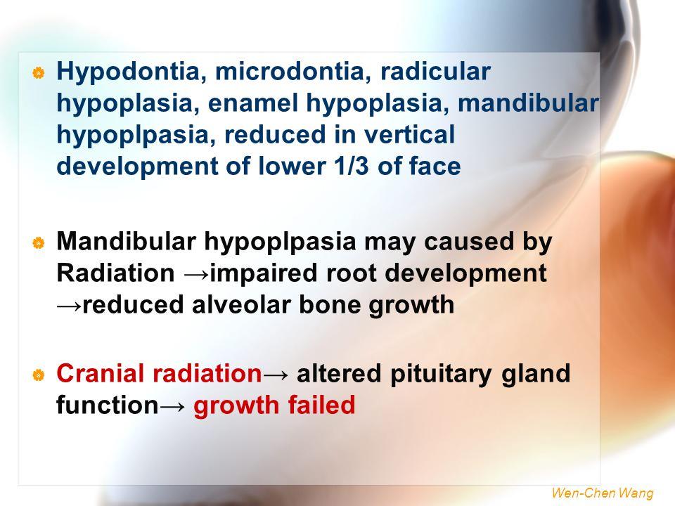 Wen-Chen Wang  Hypodontia, microdontia, radicular hypoplasia, enamel hypoplasia, mandibular hypoplpasia, reduced in vertical development of lower 1/3