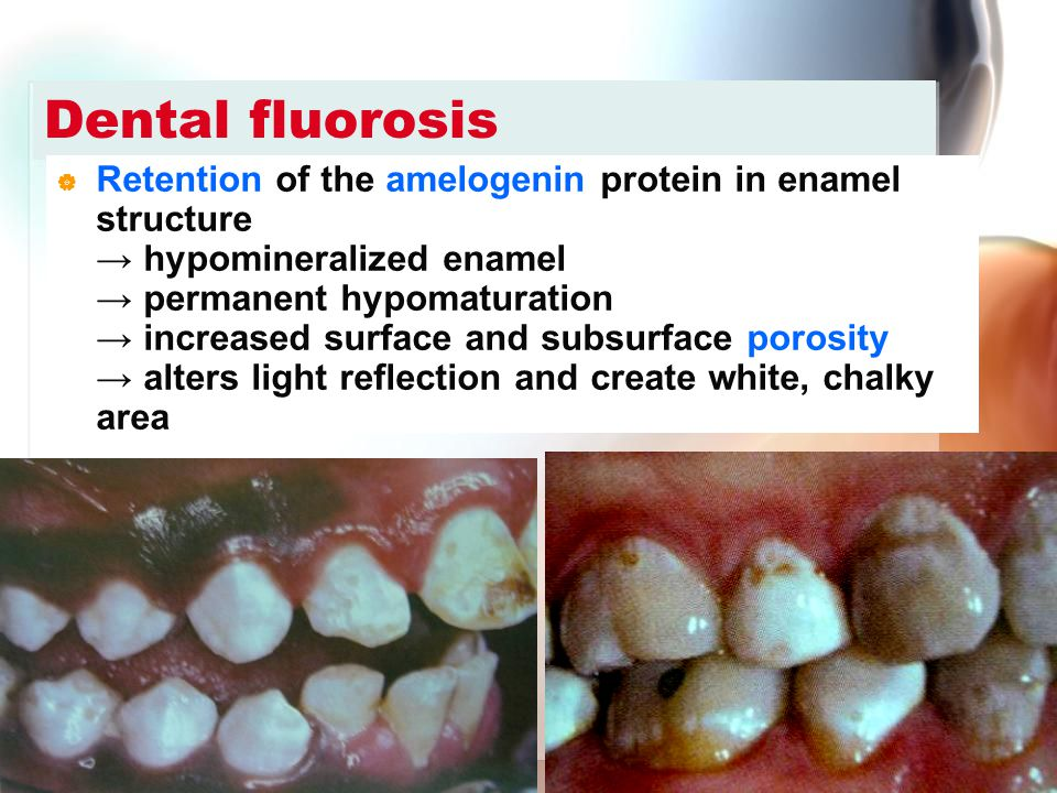 Wen-Chen Wang Dental fluorosis  Retention of the amelogenin protein in enamel structure → hypomineralized enamel → permanent hypomaturation → increas