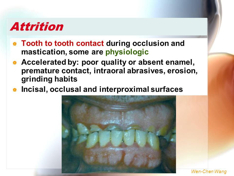 Wen-Chen Wang Attrition  Tooth to tooth contact during occlusion and mastication, some are physiologic  Accelerated by: poor quality or absent ename