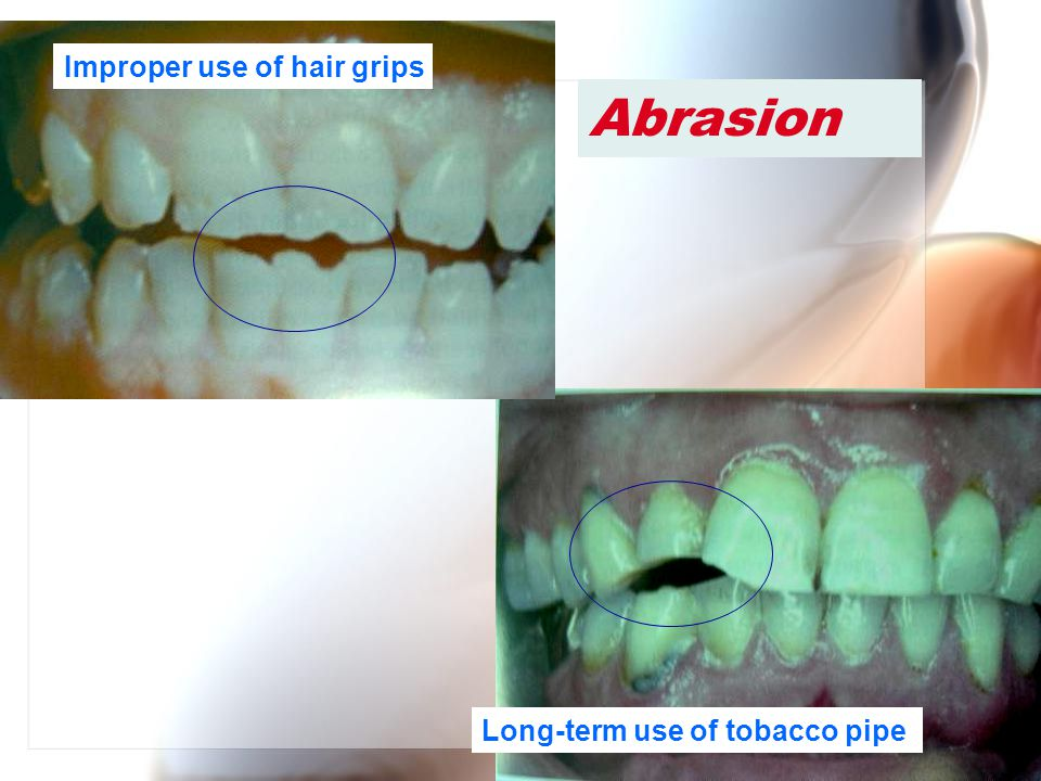 Wen-Chen Wang Abrasion Long-term use of tobacco pipe Improper use of hair grips