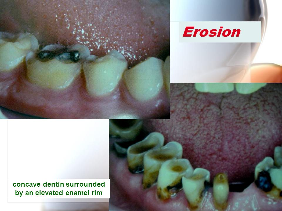 Wen-Chen Wang Erosion concave dentin surrounded by an elevated enamel rim
