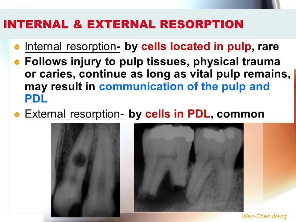 Wen-Chen Wang INTERNAL & EXTERNAL RESORPTION  Internal resorption- by cells located in pulp, rare  Follows injury to pulp tissues, physical trauma o