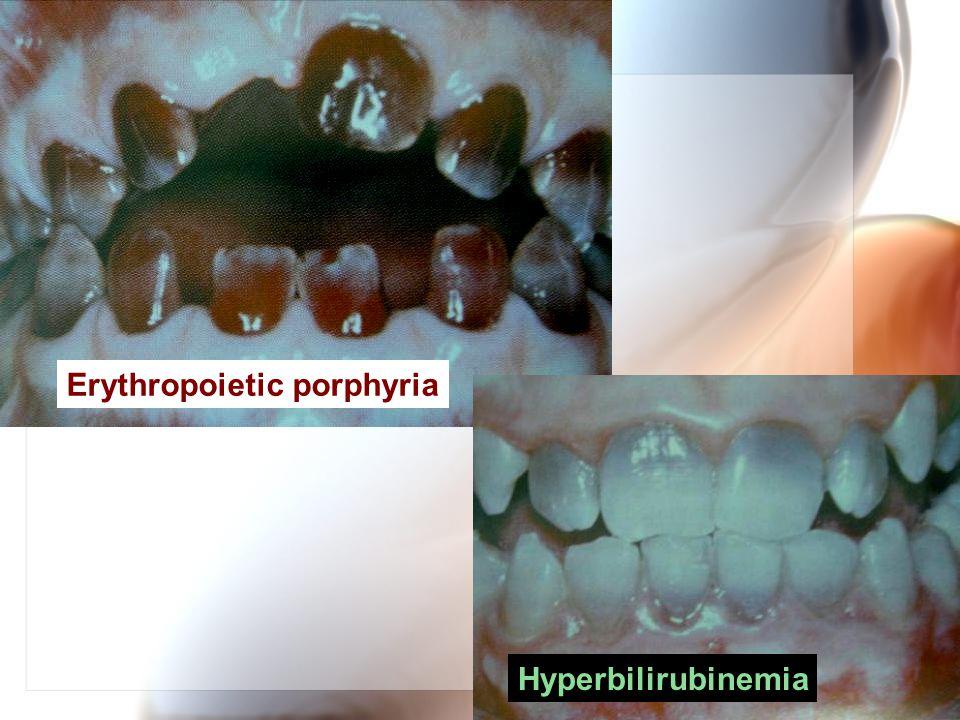 Wen-Chen Wang Erythropoietic porphyria Hyperbilirubinemia
