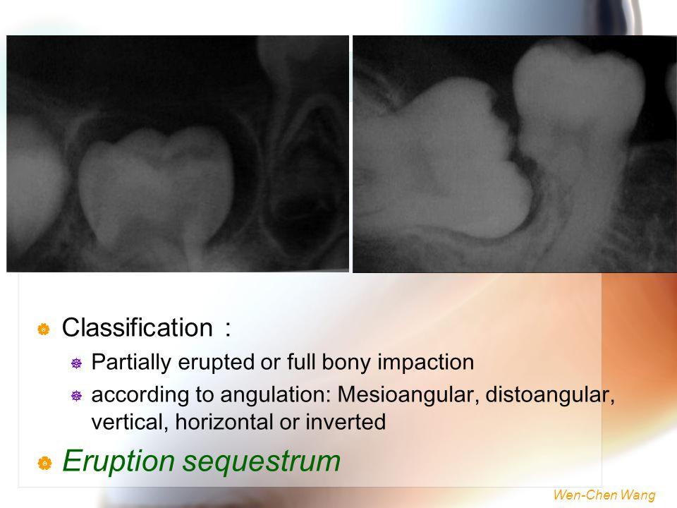 Wen-Chen Wang  Classification :  Partially erupted or full bony impaction  according to angulation: Mesioangular, distoangular, vertical, horizonta