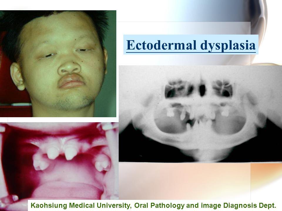 Wen-Chen Wang Ectodermal dysplasia Kaohsiung Medical University, Oral Pathology and image Diagnosis Dept.