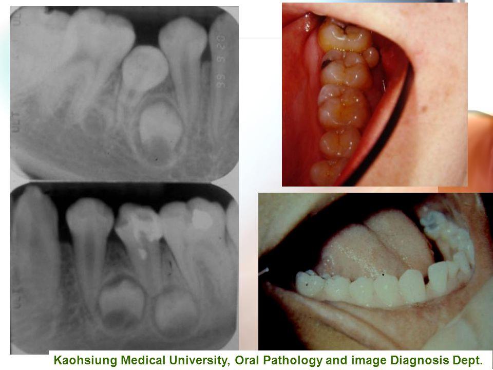 Wen-Chen Wang Kaohsiung Medical University, Oral Pathology and image Diagnosis Dept.