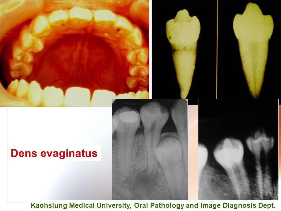 Wen-Chen Wang Dens evaginatus Kaohsiung Medical University, Oral Pathology and image Diagnosis Dept.