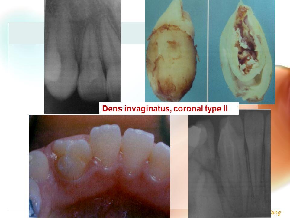 Wen-Chen Wang Dens invaginatus, coronal type II