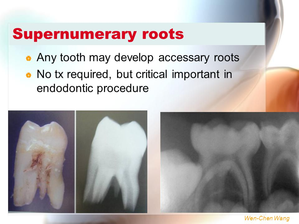 Wen-Chen Wang Supernumerary roots  Any tooth may develop accessary roots  No tx required, but critical important in endodontic procedure