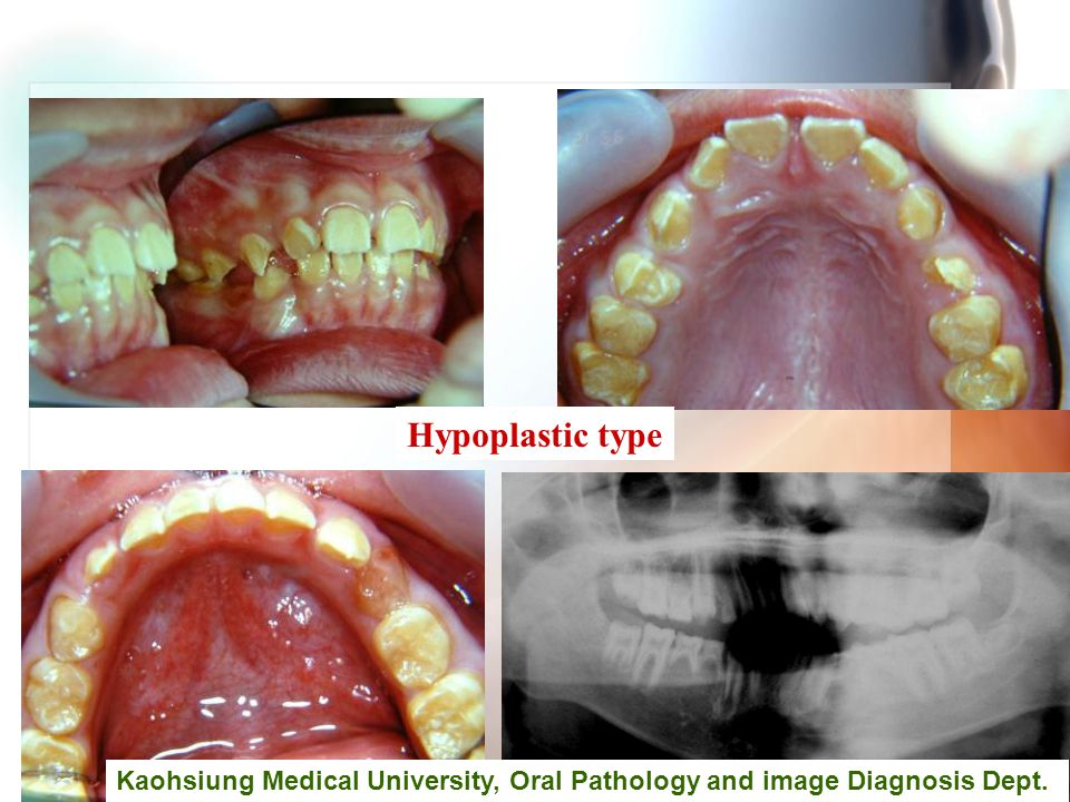 Wen-Chen Wang Hypoplastic type Kaohsiung Medical University, Oral Pathology and image Diagnosis Dept.