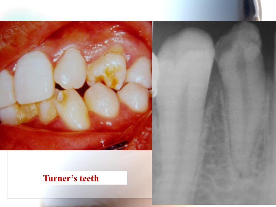 Wen-Chen Wang Turner's teeth