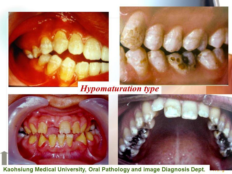 Wen-Chen Wang Hypomaturation type Kaohsiung Medical University, Oral Pathology and image Diagnosis Dept.