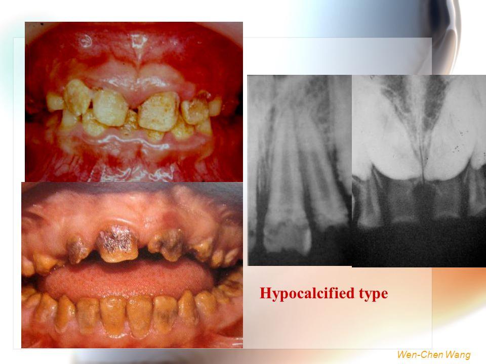 Wen-Chen Wang Hypocalcified type