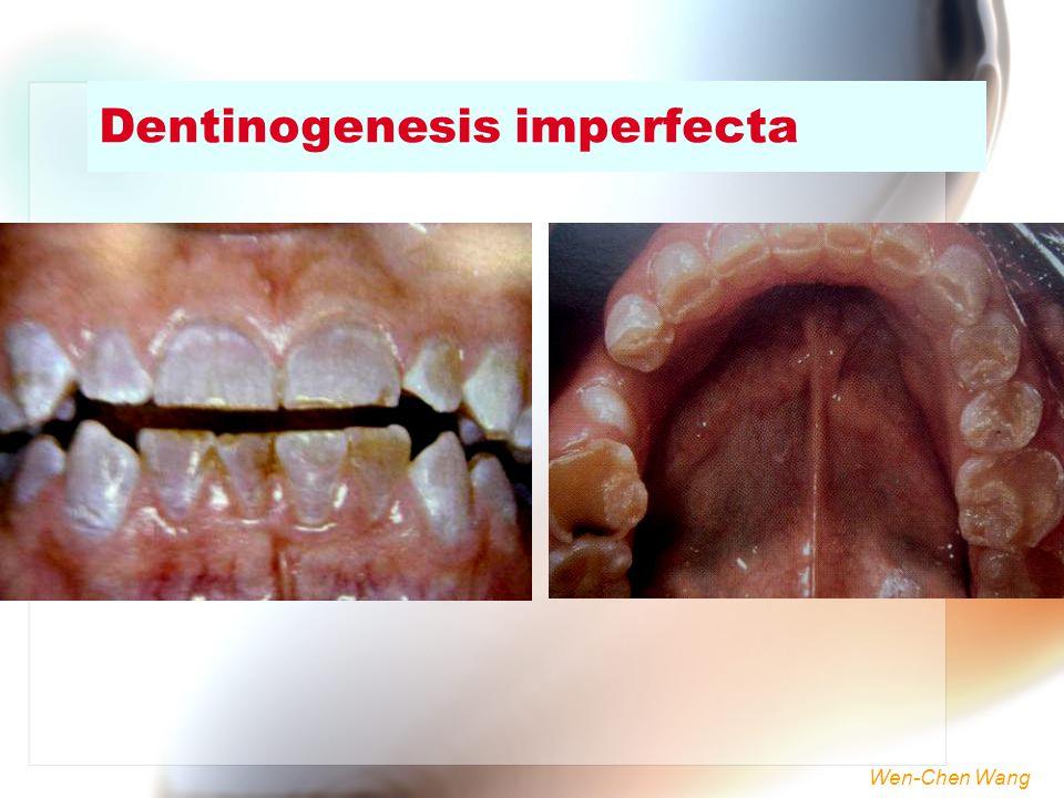 Wen-Chen Wang Dentinogenesis imperfecta