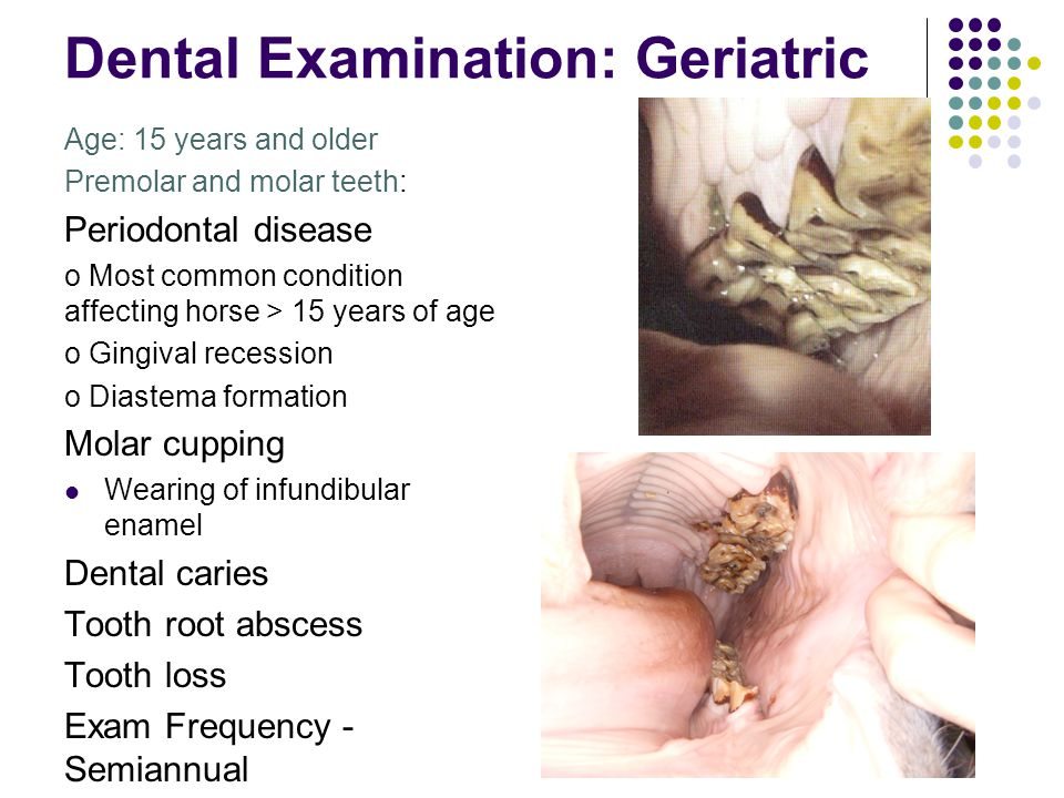 Dental Examination: Geriatric Age: 15 years and older Premolar and molar teeth: Periodontal disease o Most common condition affecting horse > 15 years