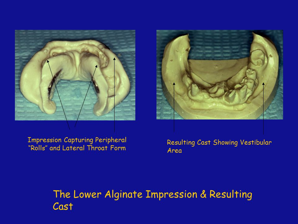 """The Lower Alginate Impression & Resulting Cast Impression Capturing Peripheral """"Rolls"""" and Lateral Throat Form Resulting Cast Showing Vestibular Area"""