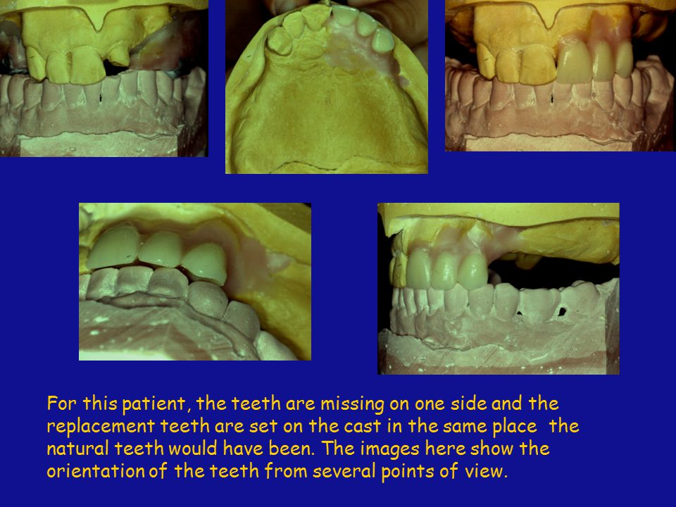 For this patient, the teeth are missing on one side and the replacement teeth are set on the cast in the same place the natural teeth would have been.