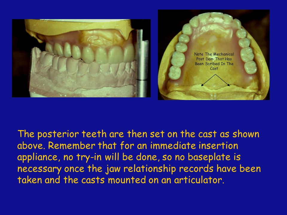 The posterior teeth are then set on the cast as shown above. Remember that for an immediate insertion appliance, no try-in will be done, so no basepla