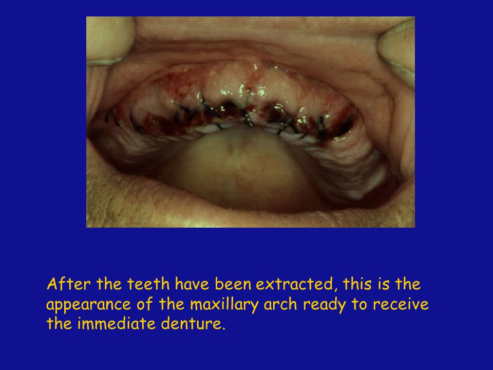 After the teeth have been extracted, this is the appearance of the maxillary arch ready to receive the immediate denture.