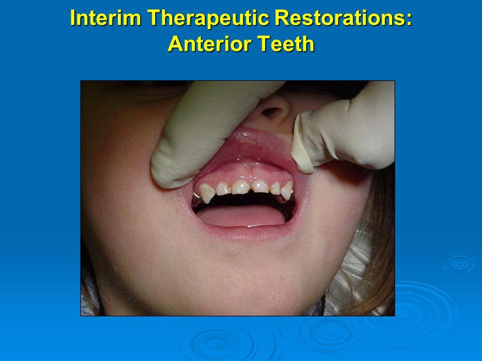 Interim Therapeutic Restorations: Anterior Teeth