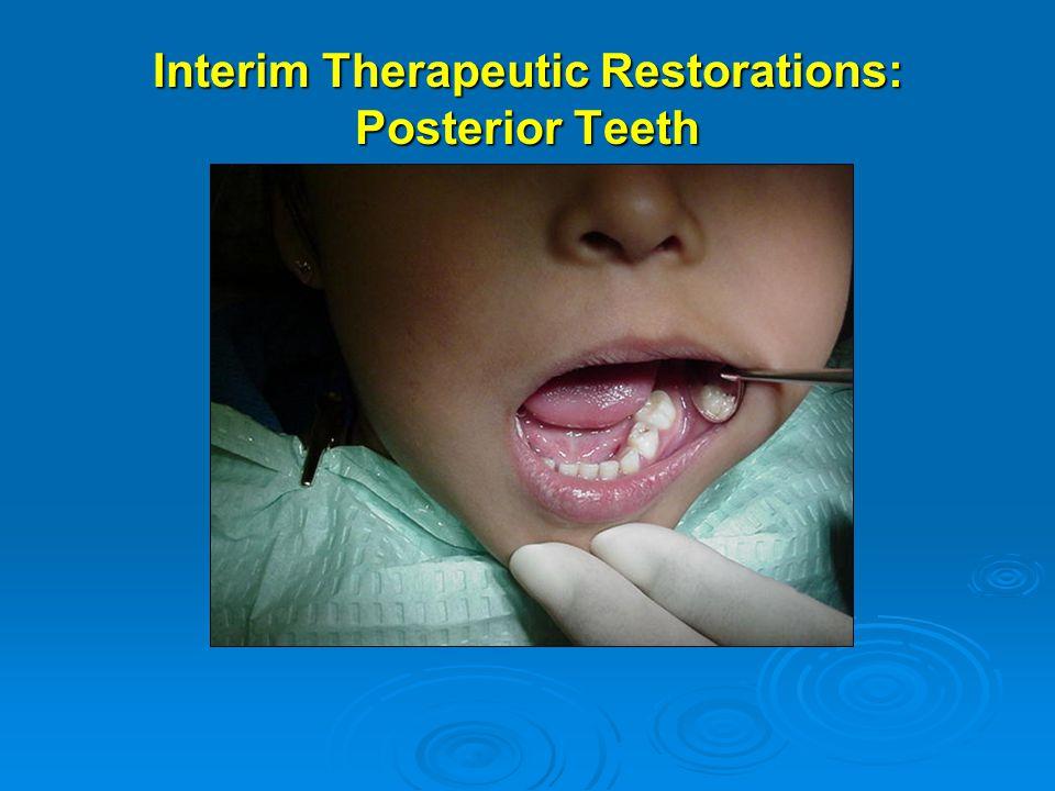 Interim Therapeutic Restorations: Posterior Teeth