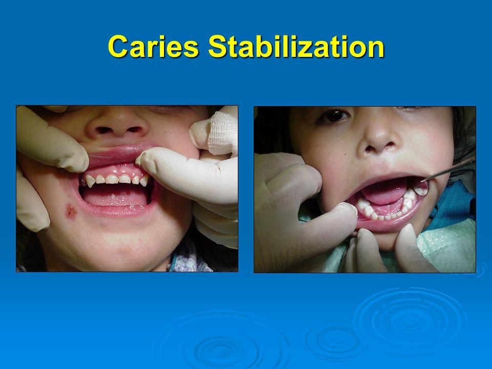 Caries Stabilization