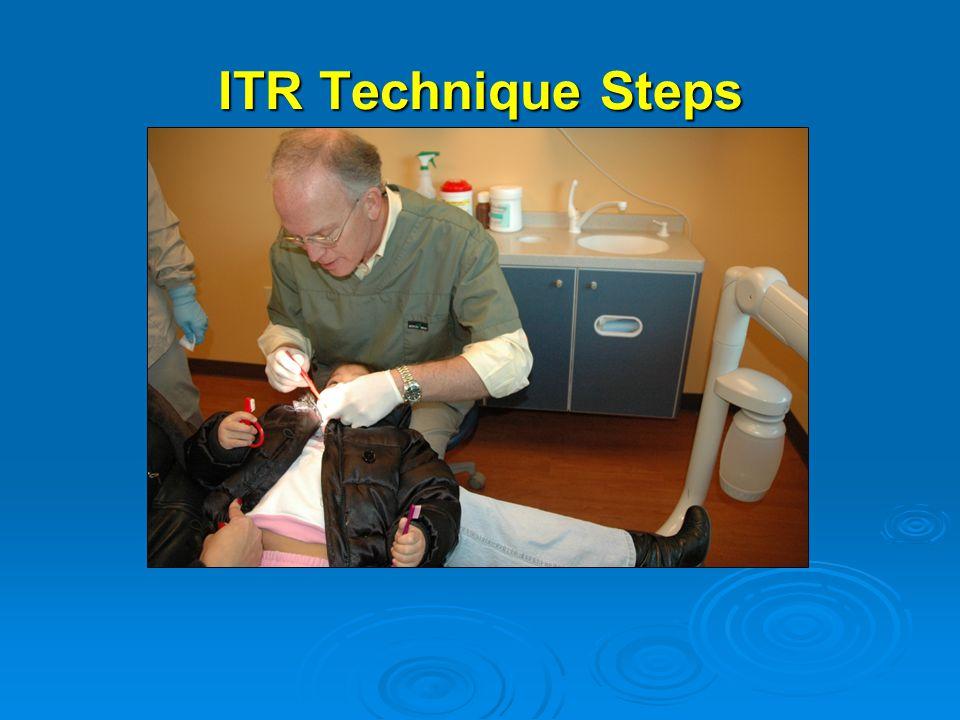 ITR Technique Steps