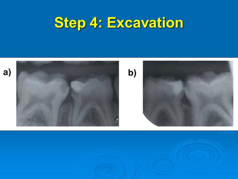Step 4: Excavation