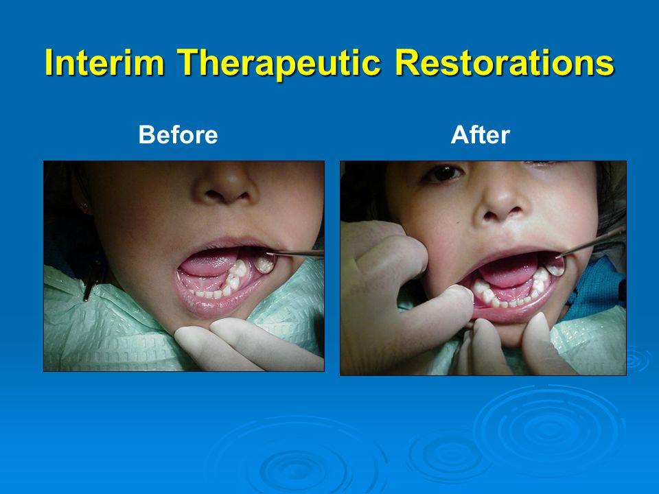 Interim Therapeutic Restorations BeforeAfter