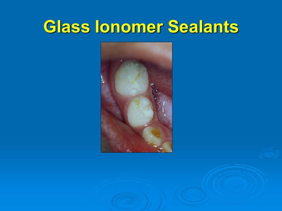 Glass Ionomer Sealants
