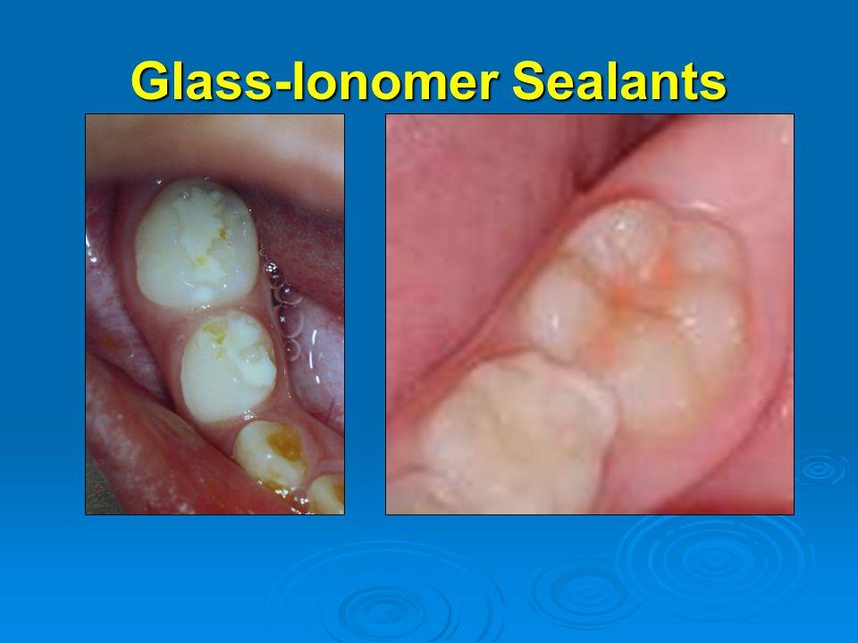 Glass-Ionomer Sealants