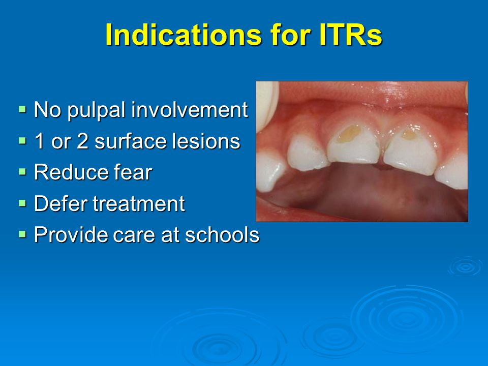 Indications for ITRs  No pulpal involvement  1 or 2 surface lesions  Reduce fear  Defer treatment  Provide care at schools
