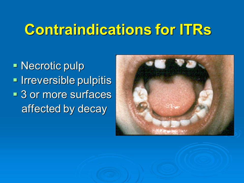 Contraindications for ITRs  Necrotic pulp  Irreversible pulpitis  3 or more surfaces affected by decay affected by decay
