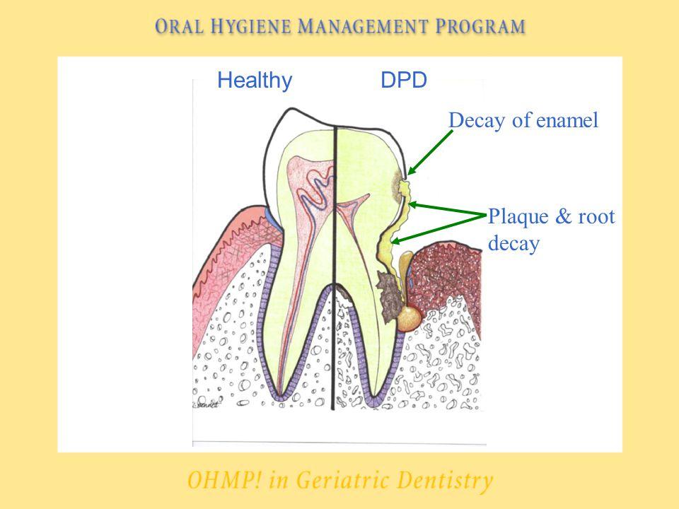 HealthyDPD Decay of enamel Plaque & root decay
