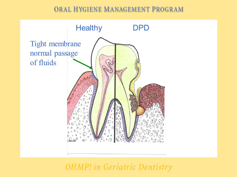 HealthyDPD Tight membrane normal passage of fluids
