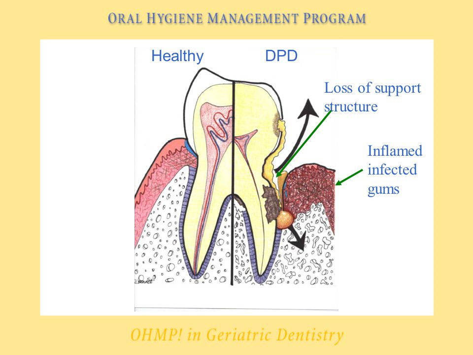HealthyDPD Loss of support structure Inflamed infected gums