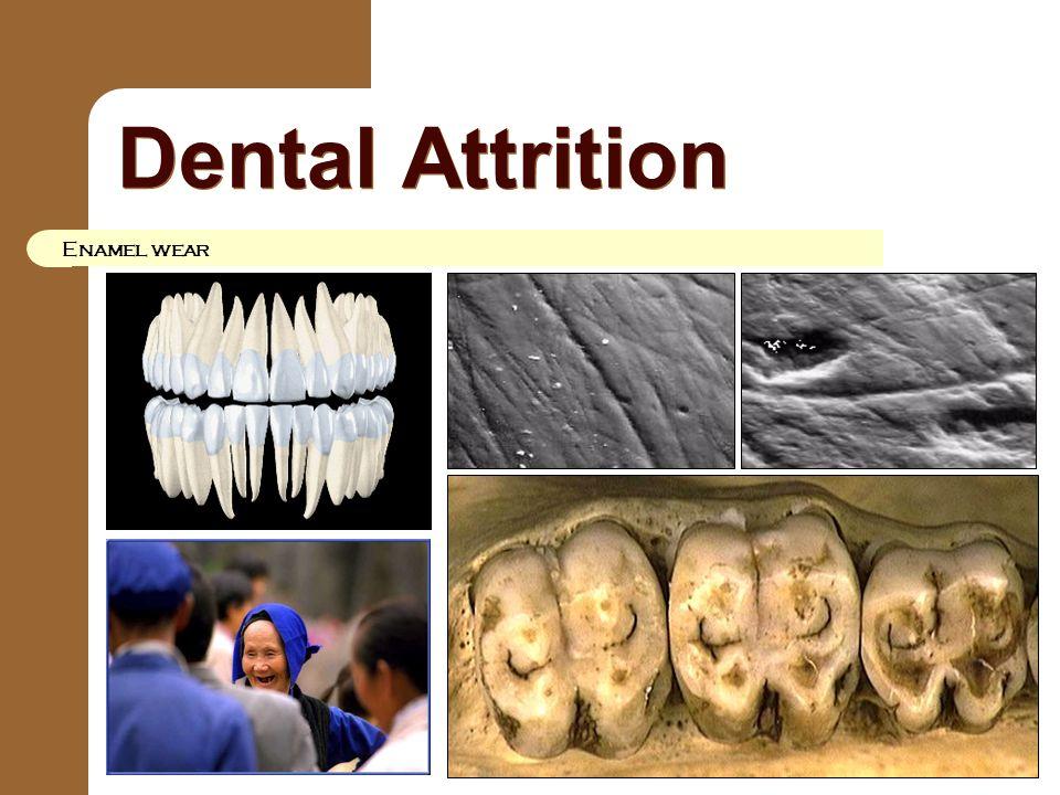Dental Attrition Enamel wear