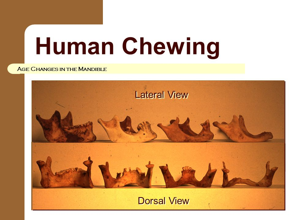 Human Chewing Age Changes in the Mandible Lateral View Dorsal View