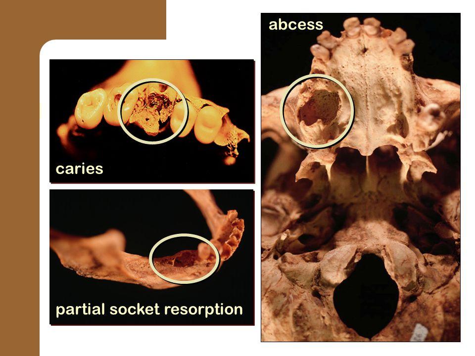 caries partial socket resorption abcess