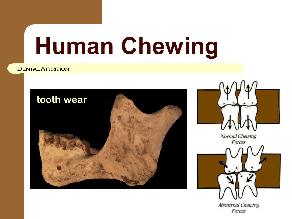 Human Chewing Dental Attrition tooth wear