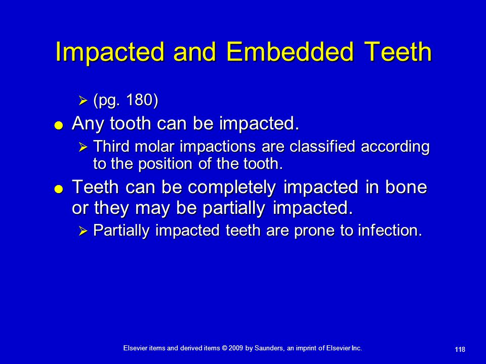 118 Elsevier items and derived items © 2009 by Saunders, an imprint of Elsevier Inc. Impacted and Embedded Teeth  (pg. 180)  Any tooth can be impact