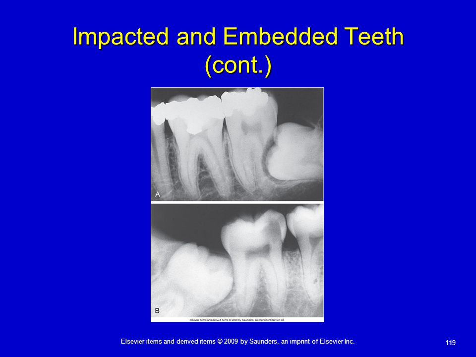 119 Elsevier items and derived items © 2009 by Saunders, an imprint of Elsevier Inc. Impacted and Embedded Teeth (cont.)