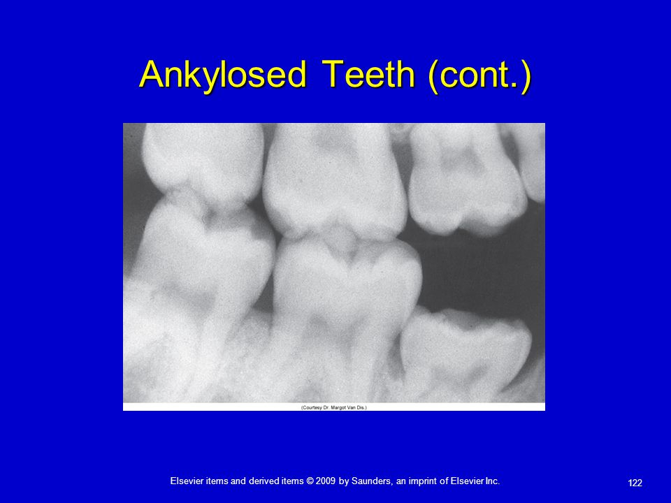 122 Elsevier items and derived items © 2009 by Saunders, an imprint of Elsevier Inc. Ankylosed Teeth (cont.)
