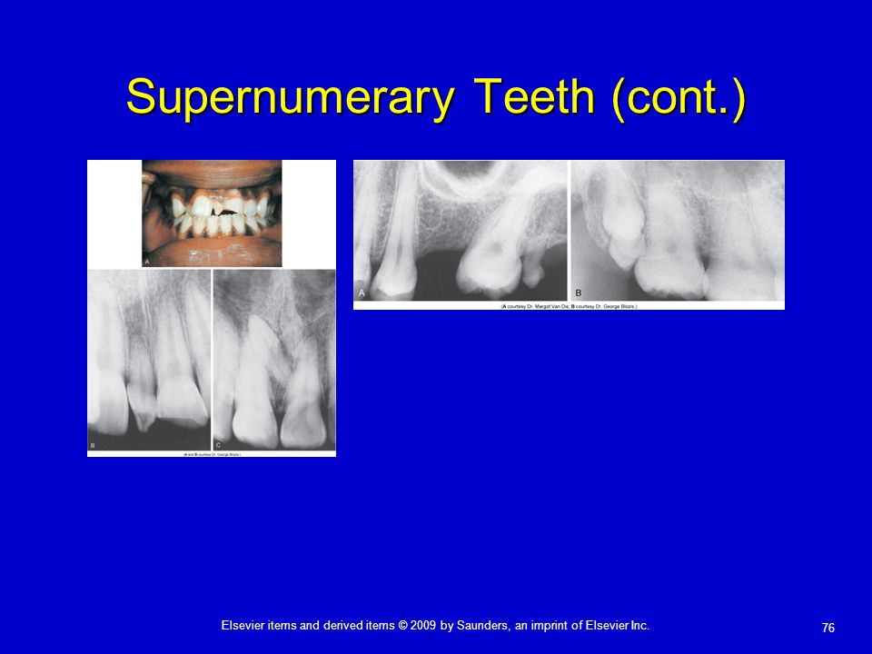 76 Elsevier items and derived items © 2009 by Saunders, an imprint of Elsevier Inc. Supernumerary Teeth (cont.)